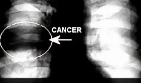 L'idea che sta dietro a questo genere di ricerche è ben nota a tutti gli oncologi: il tumore prospera in ambiente acido ed anzi lo genera attorno a sé, con ciò favorendo le metastasi.